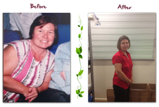 Before and After of woman lost weight on the HcG weight loss diet