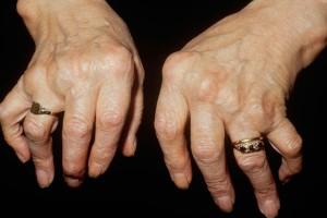 Hands affected by Rheumatoid Arthritis
