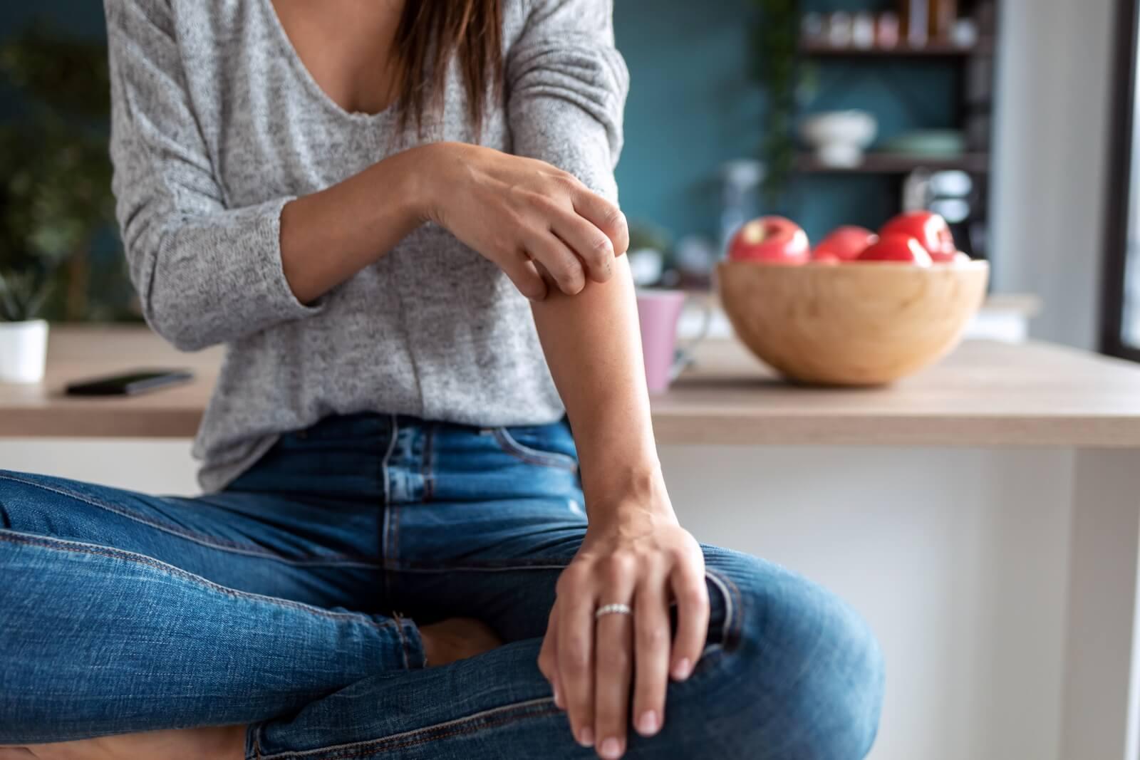 Itchy Eczema Flare